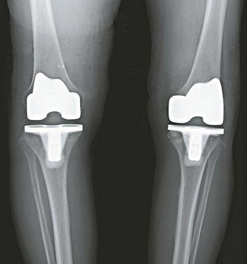 雙側人工膝關節置換手術。 圖/謝邦鑫醫師提供
