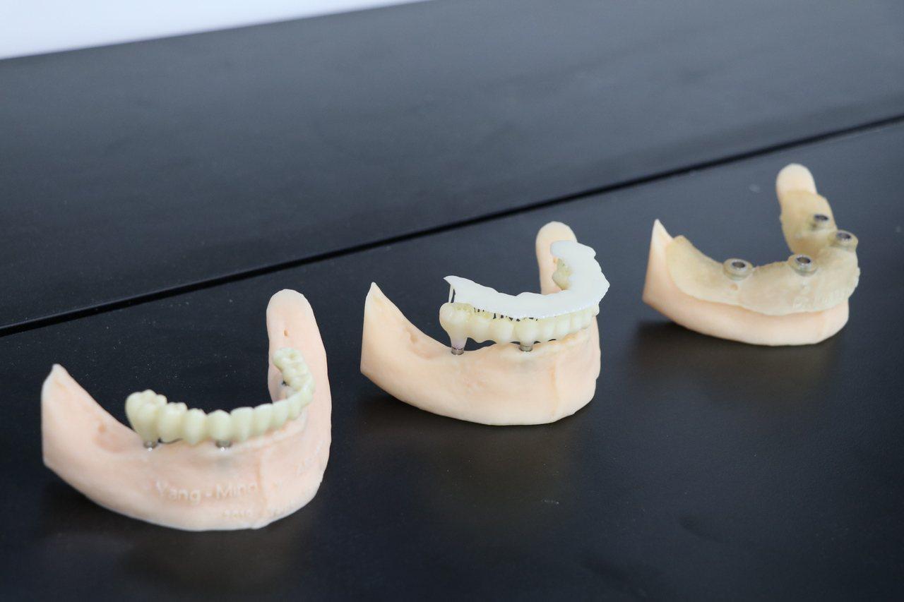 陽明大學表示,數位牙醫是透過資訊科技與3D列印技術,全面改善牙科診療方式的新興領...