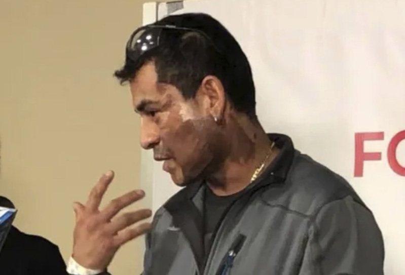 來自秘魯的歸化移民維萊拉茲(Mahud Villalaz)遭潑電池酸液,臉上燒傷。美聯社