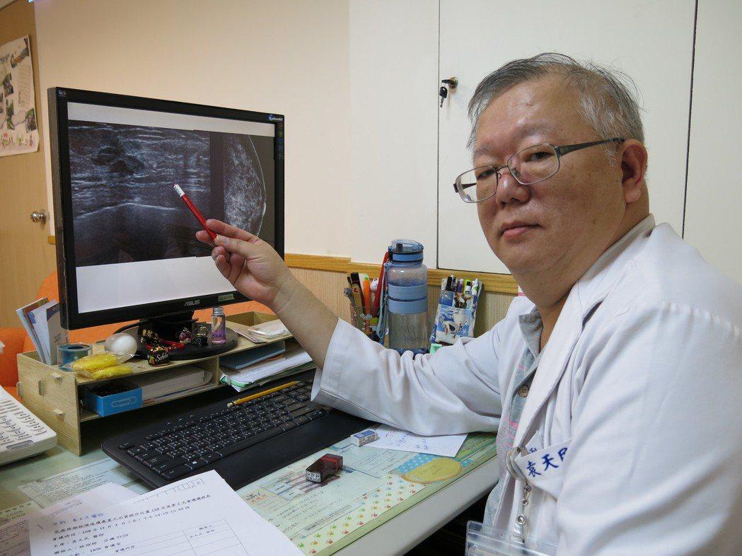 豐原醫院乳房外科醫師袁天民表示,乳房攝影仍有10%至15%的初期癌症可能性是無法...
