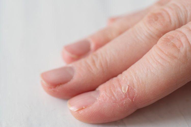 台北巿立萬芳醫院皮膚科主任李友專特別提出以下的3「不」策略,讓富貴手不再復發。圖...