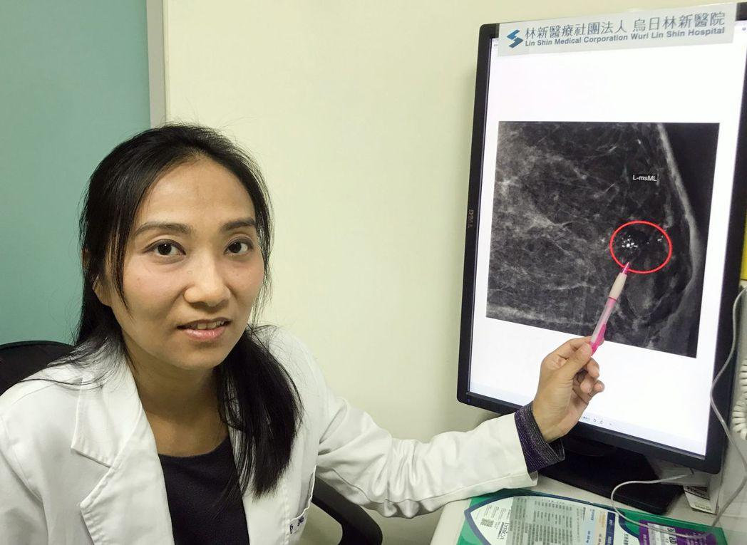 醫師吳玉婷說明,41歲家庭主婦陳小姐乳房X光攝影檢查報告顯示,左邊乳房有異常鈣化...