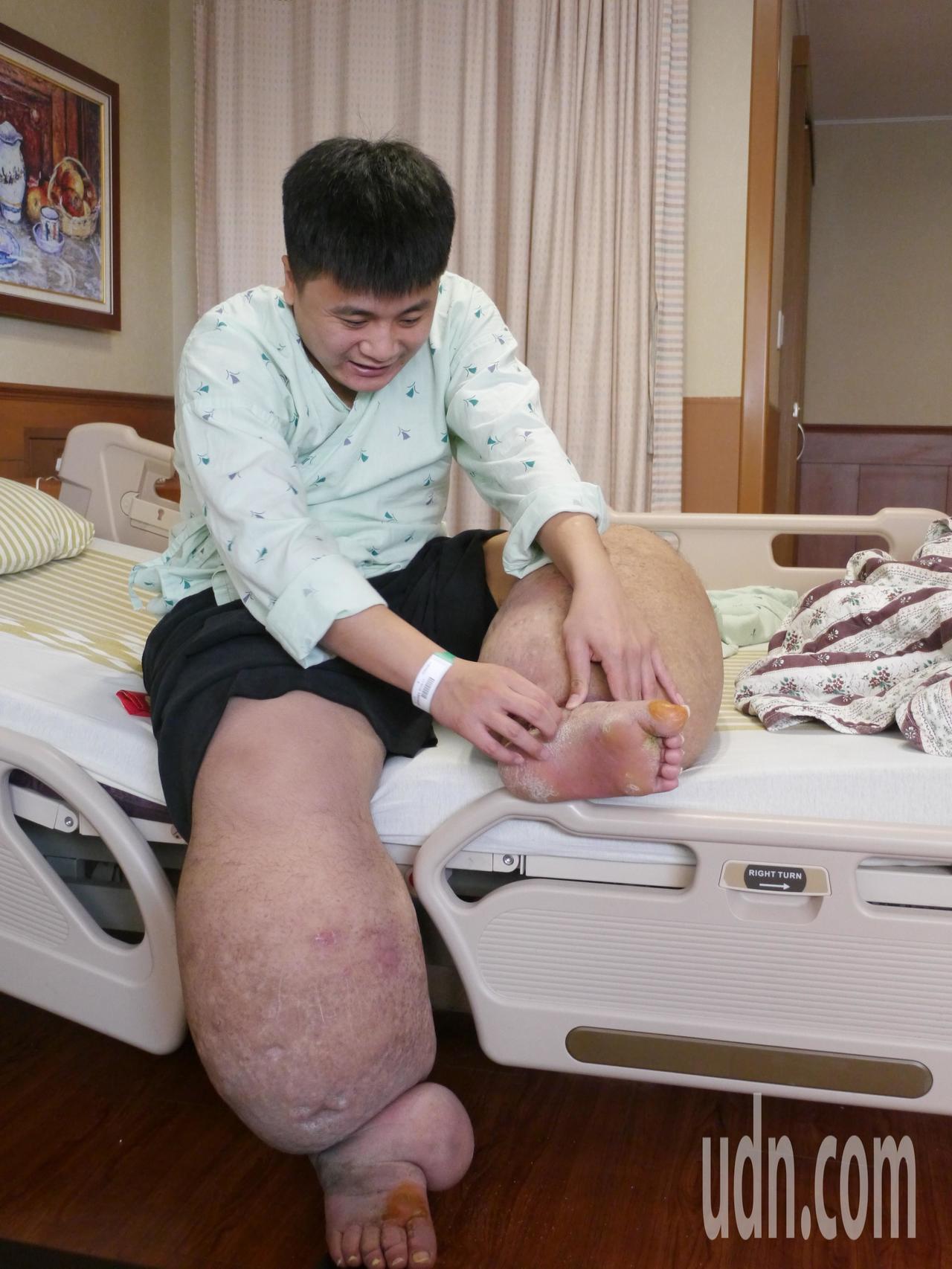 劉中秋從中學時期起發病,至今已經動過9次手術,生活飽受病痛折磨。記者徐白櫻/攝影