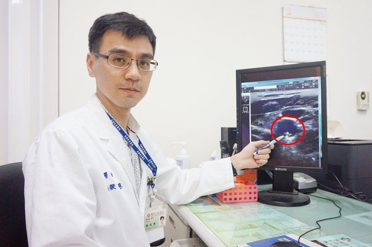 新竹馬偕醫院神經內科醫師楊敬譽表示,紅色圓圈處為病患頸動脈粥樣硬化性斑塊,如置之...
