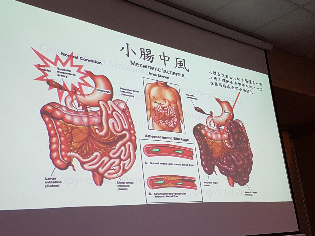 腸繫膜動脈栓塞就是俗稱的小腸中風。記者楊雅棠/攝影