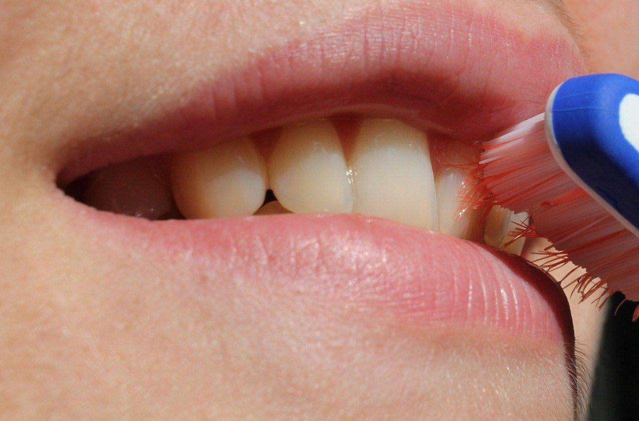 牙齒容易刷不乾淨造成牙周問題。 圖/Pixabay