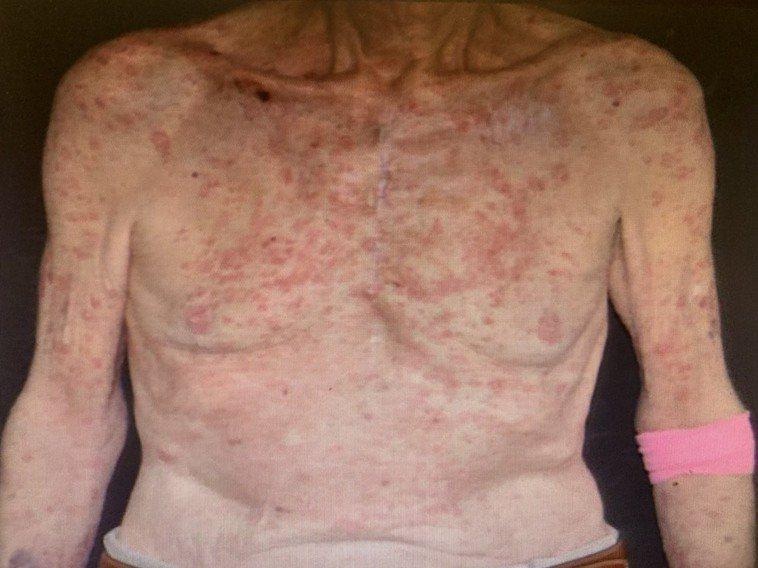 免疫療法後,部分的癌症患者會出現皮膚副作用,最常見的以紅腫、搔癢等問題為主。圖/...