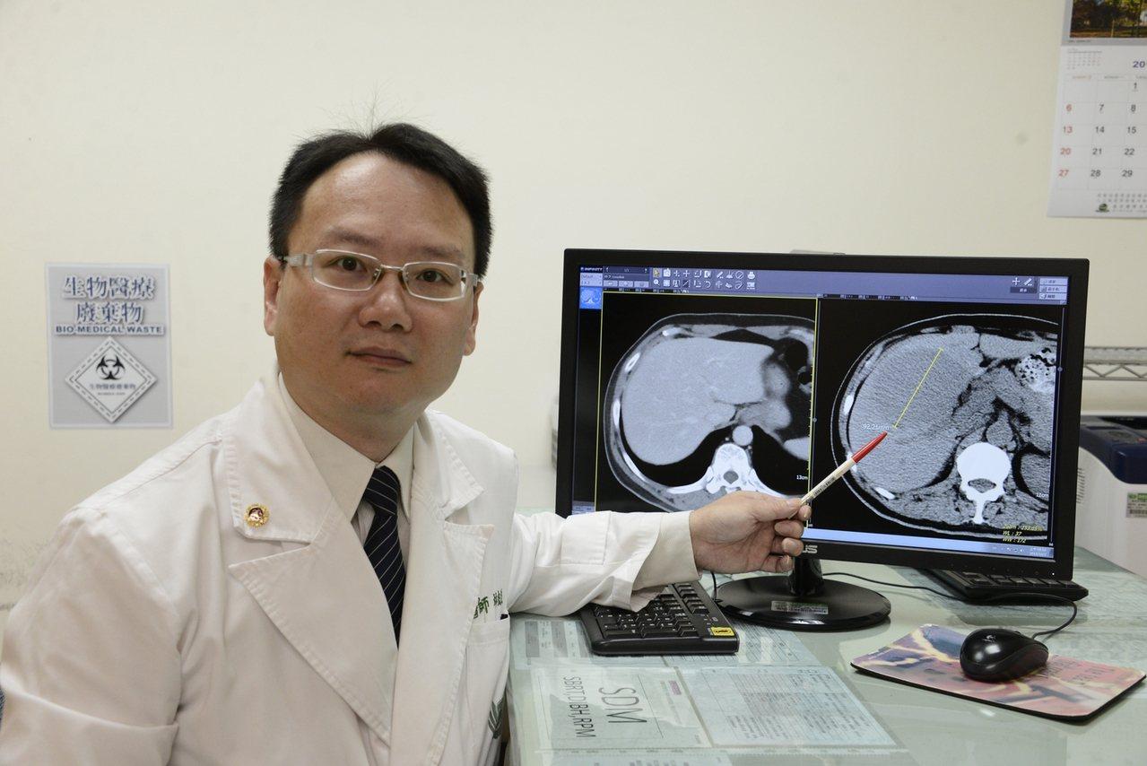 大林慈濟放射腫瘤科醫師林宏益說,翁姓患者治療半年後追蹤,肝腫瘤完全消失,持續追蹤...