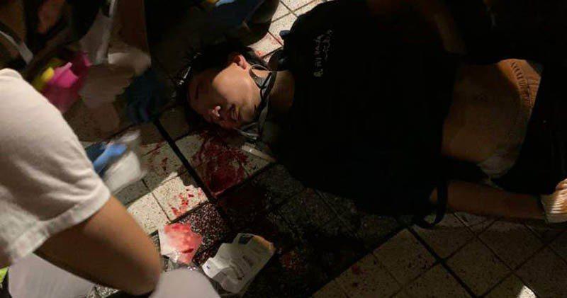 一名15歲少年疑被催淚彈擊中頭部,陷入昏迷。圖:取自明報網站