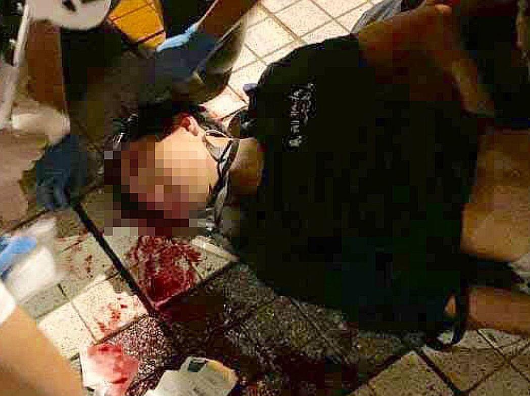 受傷少年仍留醫加護病房。(星島日報網)