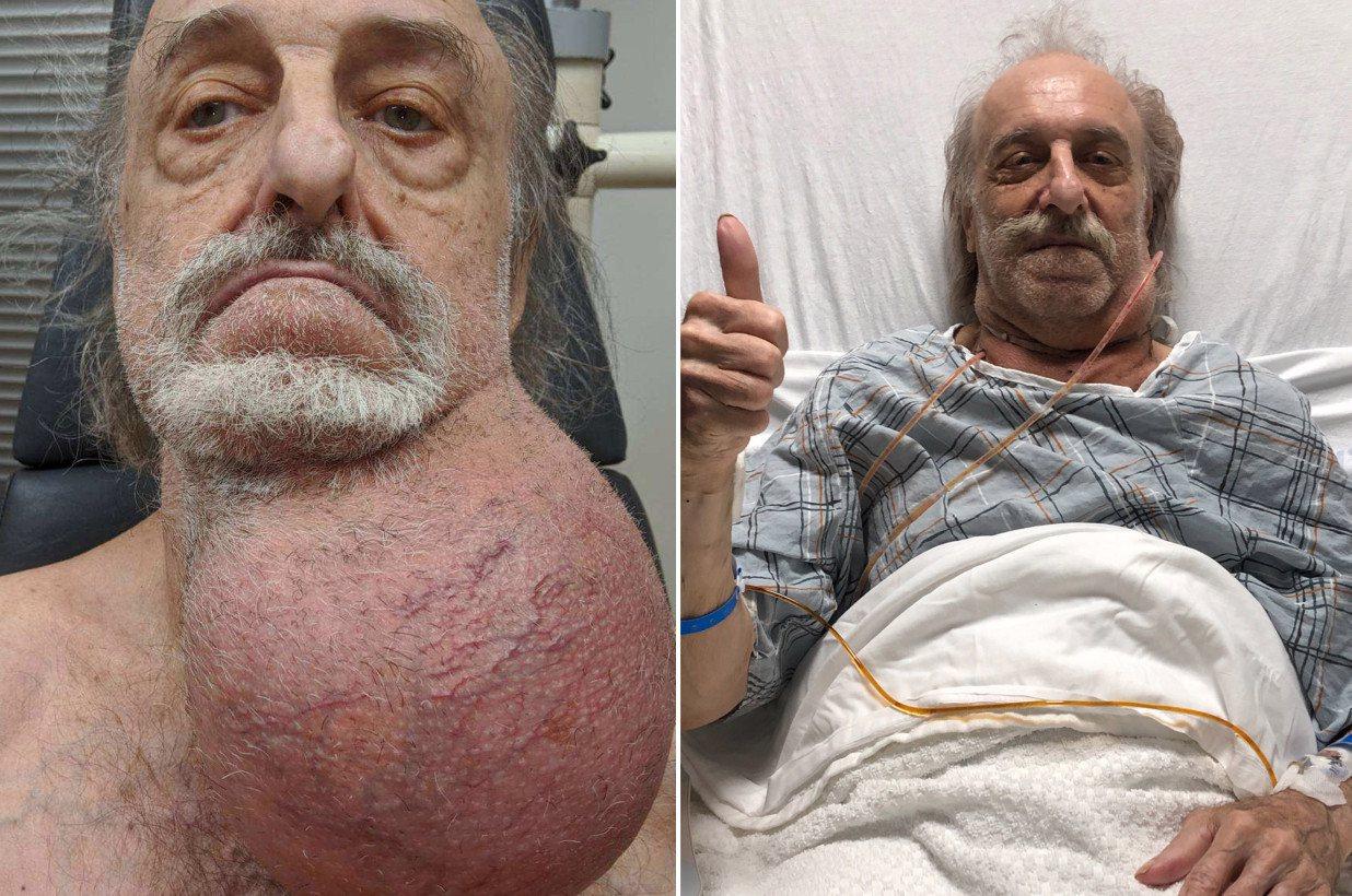 81歲老翁下巴長出跟足球一樣大的腫瘤,之後經手術後順利切除。圖擷自紐約郵報