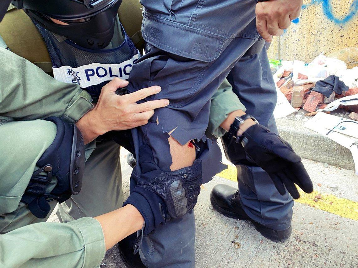 17日,一名港警遭示威者的「弓箭」射傷腳部(這也是香港衝突中的第一起弓箭致傷案例...