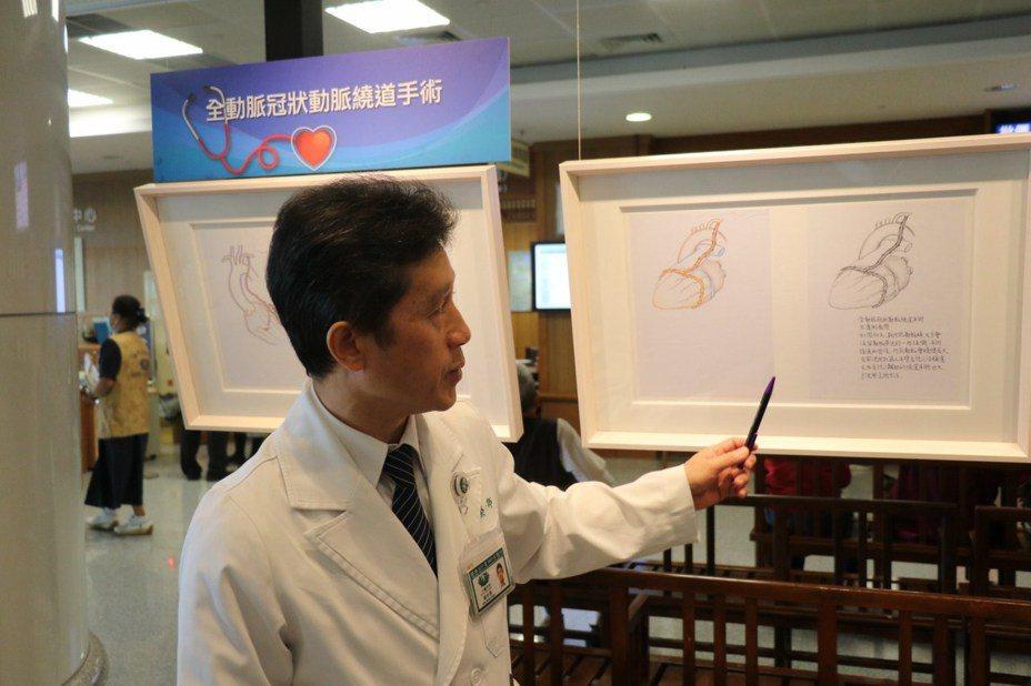 謝世榮的紀錄手稿不同於手術簡圖,他利用病歷空白畫出整個手術處理的細節,包括心臟血管外觀、縫合方式、置換血管或瓣膜,甚至會補充小圖,用一枝鉛筆畫出器官比例、治療病灶,甚至動脈瘤的深淺厚度與透視感。圖/台中慈濟醫院提供