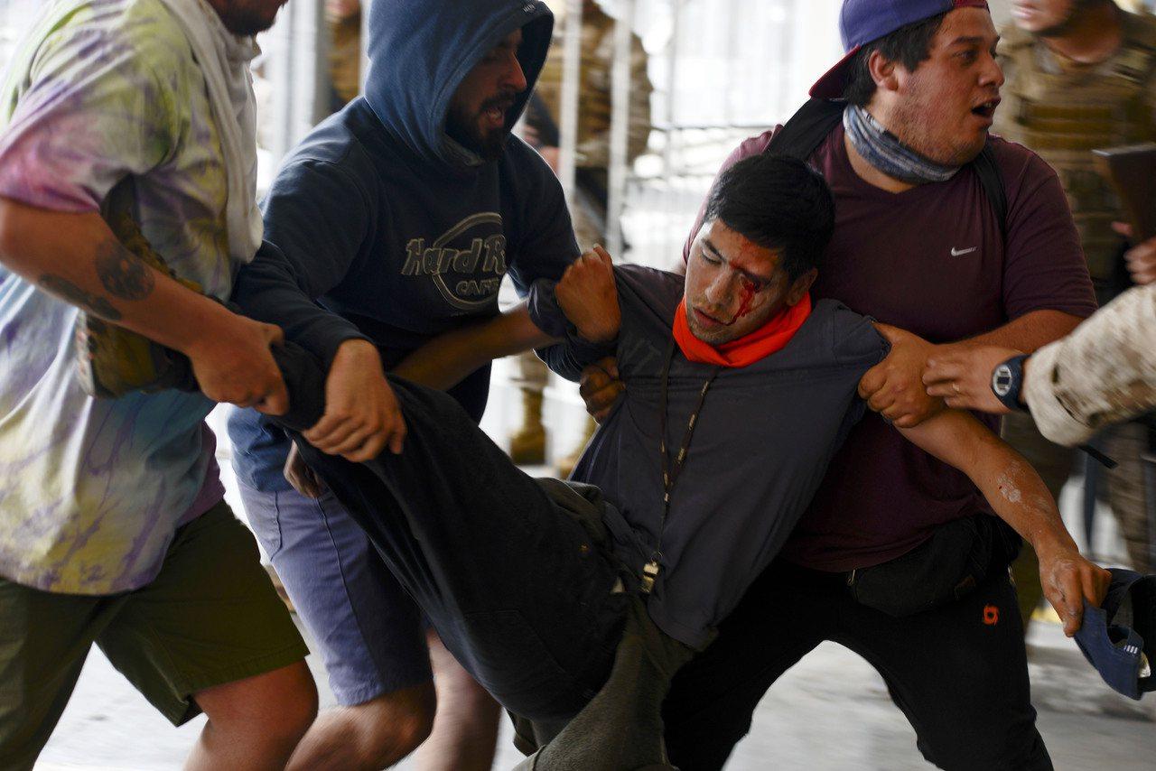 智利示威230人單眼失明,八成被鉛彈橡膠彈射中。 美聯社