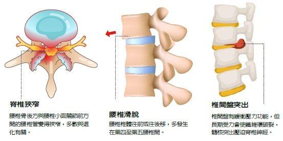 腰痛常見原因為腰椎滑脫、脊椎狹窄以及椎間盤突出。圖/元氣周報