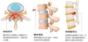 腰痛時好時壞卻置之不理 醫師:最怕變成慢性下背痛