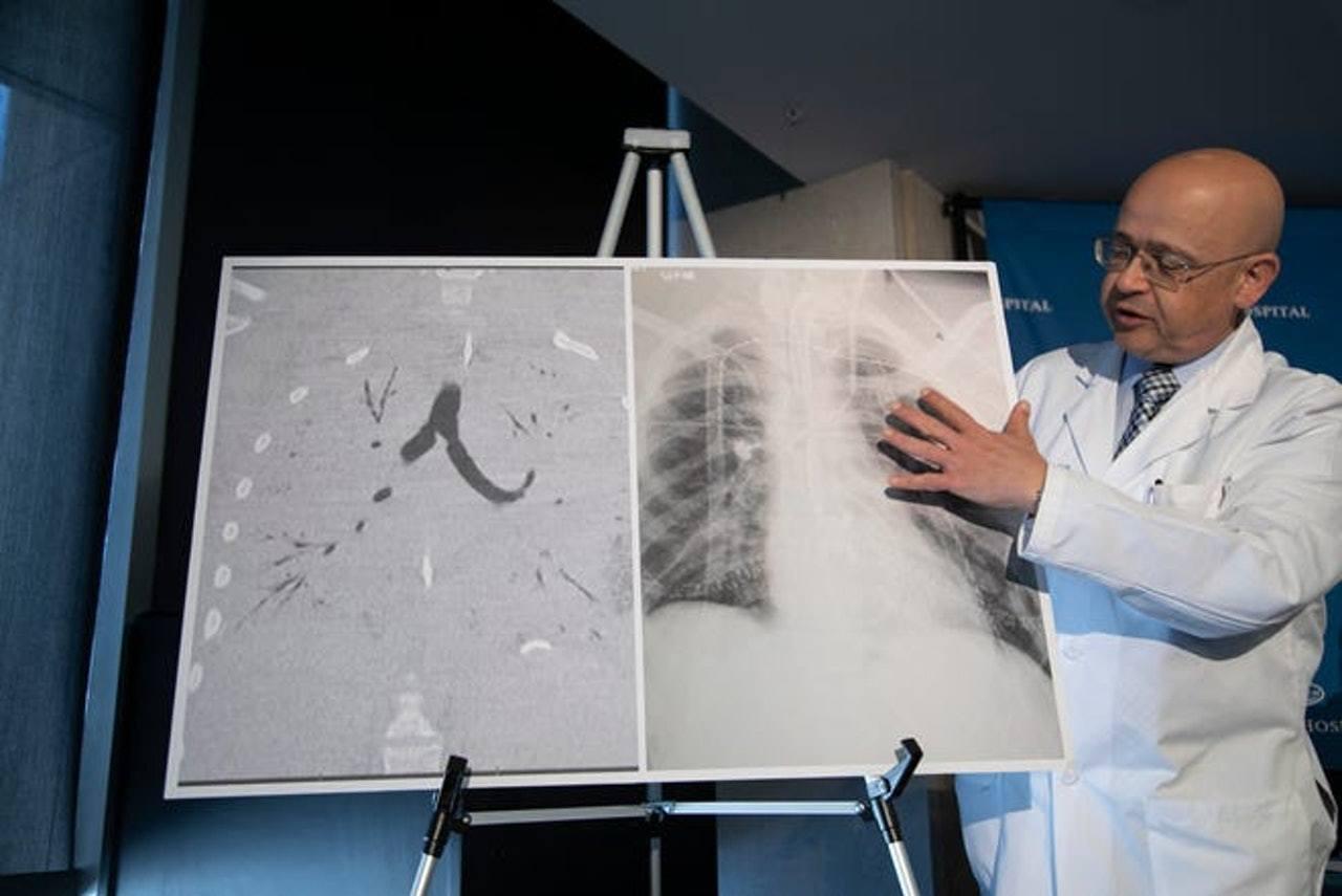 胸腔器官移植外科醫生Hassan Nemeh向在場記者展示17歲男病人接受換肺手...