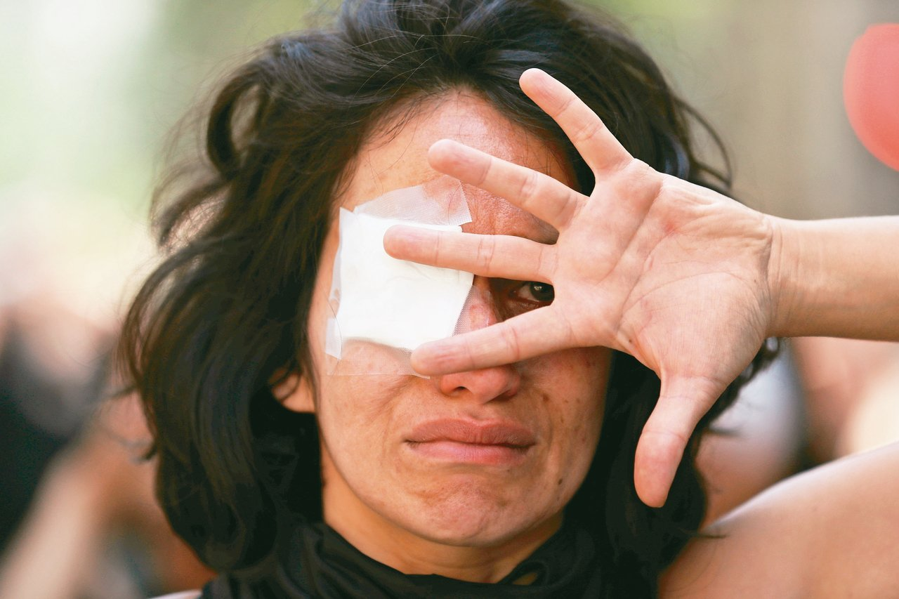 智利警方鎮壓時對民眾臉部發射鳥彈,導致200多名民眾單眼失明。 路透