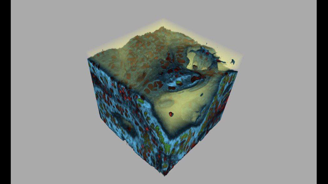 捷絡生技首創3D造影技術,完整呈現腫瘤的三維影像。