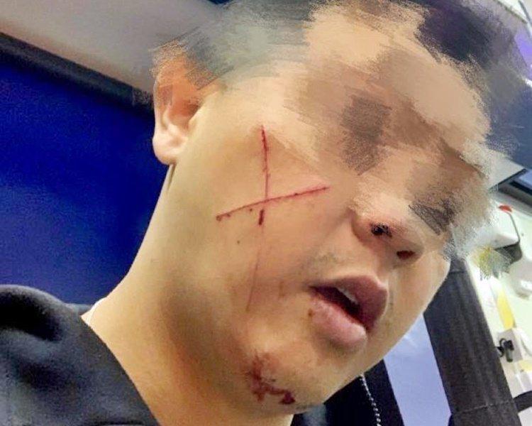 遇襲休班警右邊面有「交叉」狀傷痕。圖:取自星島日報網站