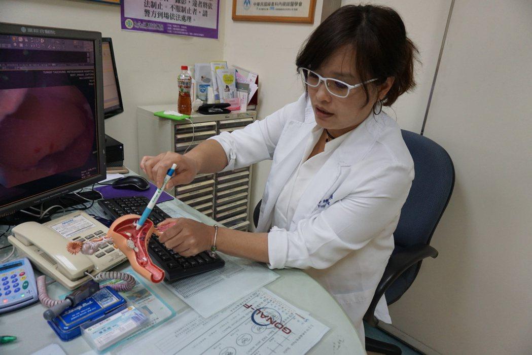 醫生所指,是子宮內膜遭肌瘤壓迫位置。圖/童綜合醫院提供