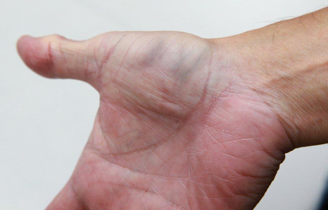 網路流傳手上的青筋是血管硬化信號,像大拇指側爆青筋反映心肺問題、大拇指根部反映冠...