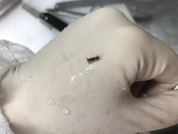 一名婦人被辣椒殼侵入肺部導致嚴重發炎,甚至出現咳血症狀。圖取自錢江晚報