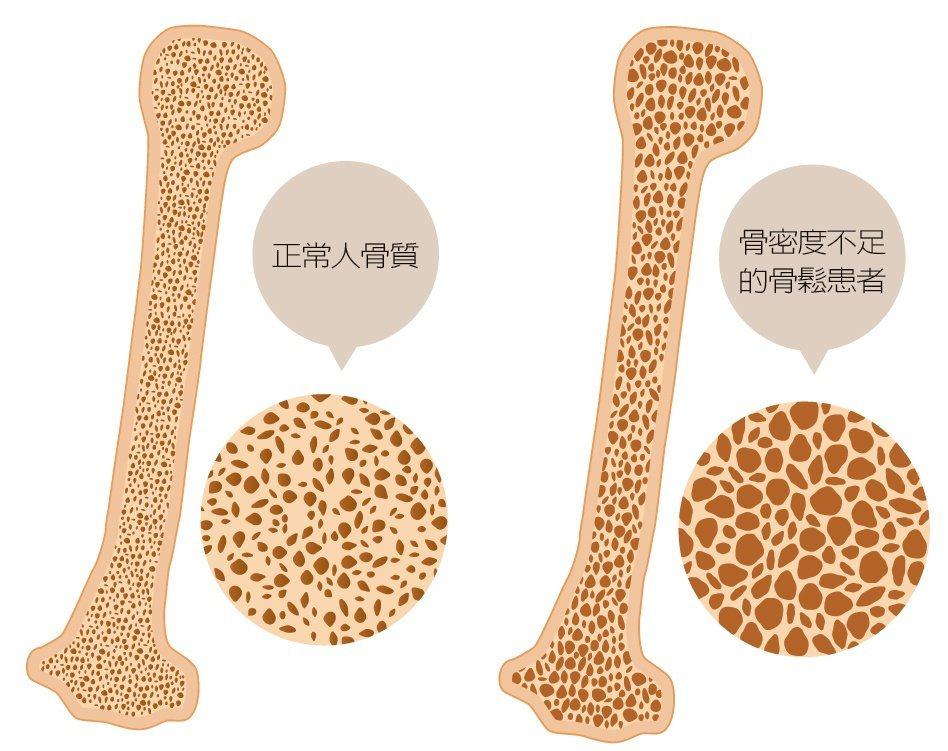 骨質疏鬆症被美國列為第2大流行性疾病,台灣則是65歲以上老人第四大常見的慢性病,...