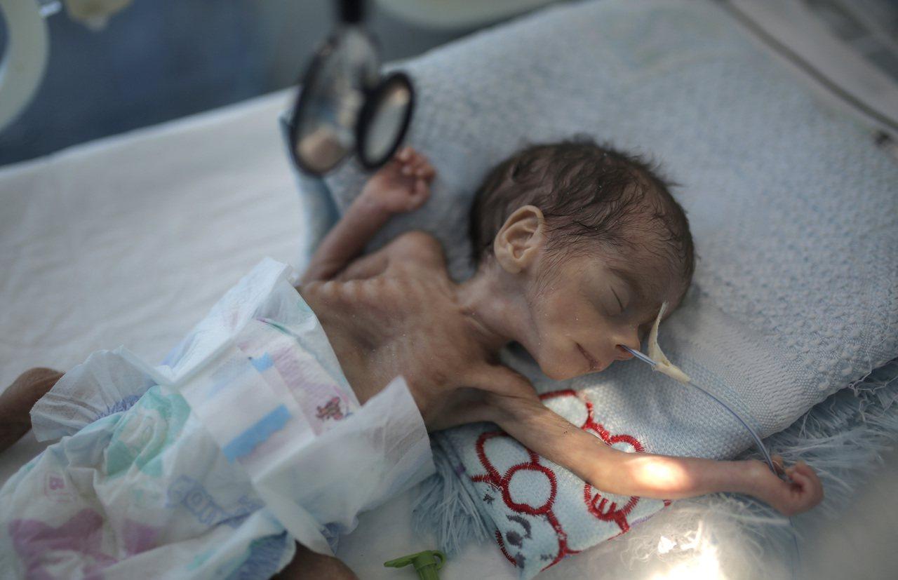 葉門首都沙那一名剛出生的嬰兒,躺在保溫箱內,但他因嚴重營養不良導致瘦骨嶙峋。美聯...