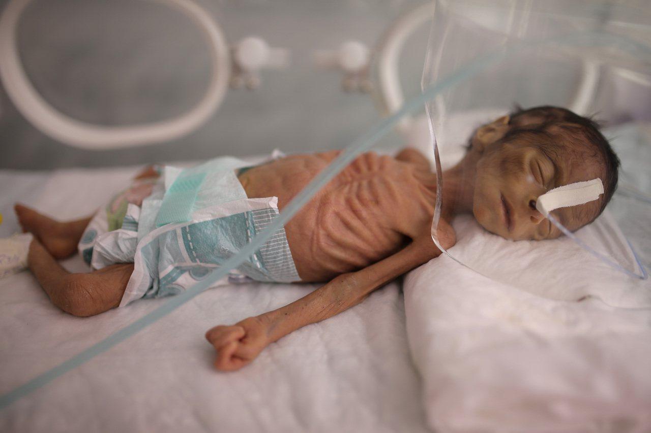 葉門一名剛出生的嬰兒,因營養不良導致雙頰凹陷、肋骨輪廓清晰可見。美聯社