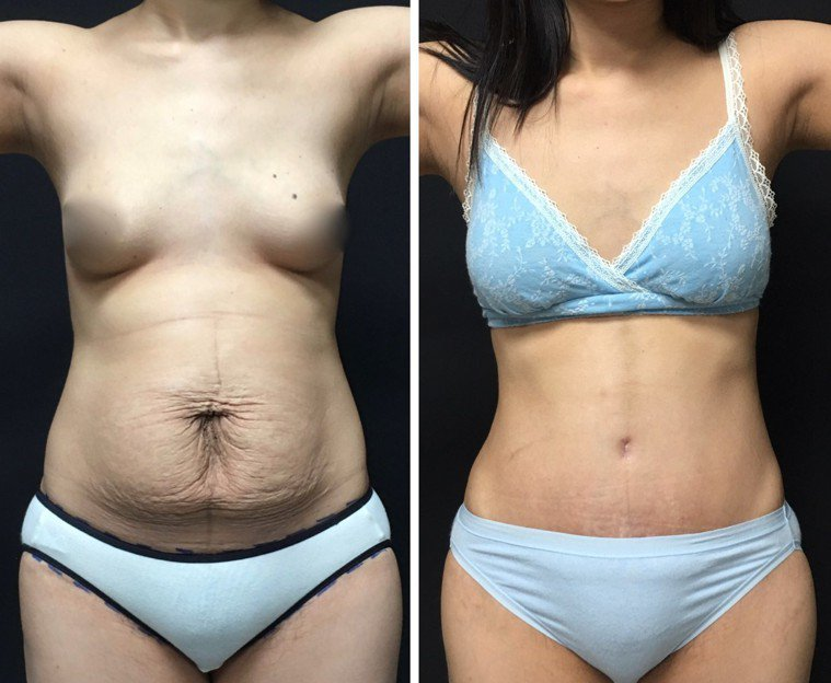 經過腹部整型,難看的妊娠紋和贅皮(左圖)除去後,腹部就恢復平坦、好看的外表(右圖...