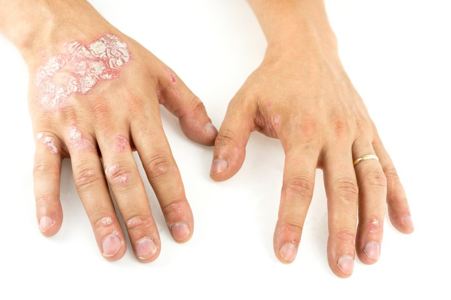 乾癬是慢性免疫系統疾病,患者應該耐心治療。 圖/123RF