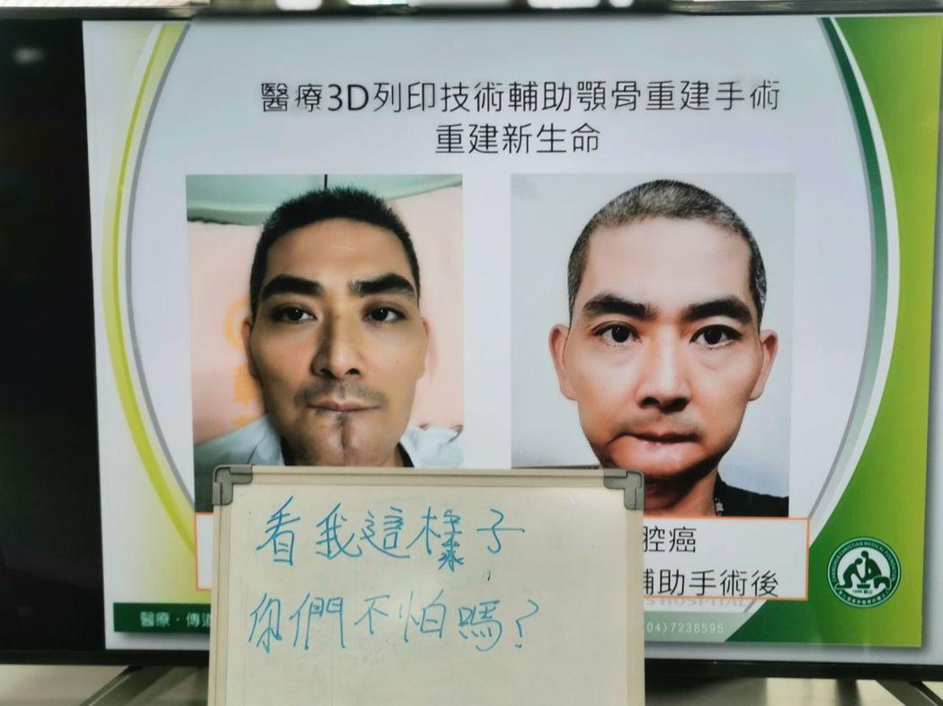 42歲型男何先生是檳榔族,原本常被說像藝人李志希、劉德華,因舌癌進行切除下顎骨手...