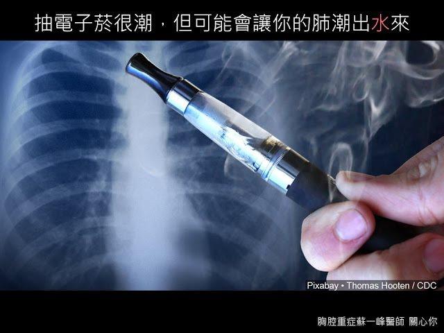 圖片提供/蘇一峰醫師
