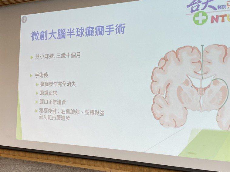 台大醫療團隊採用微創的半腦切開手術,僅打開一個六公分長的頭皮傷口,在完全未切除任...