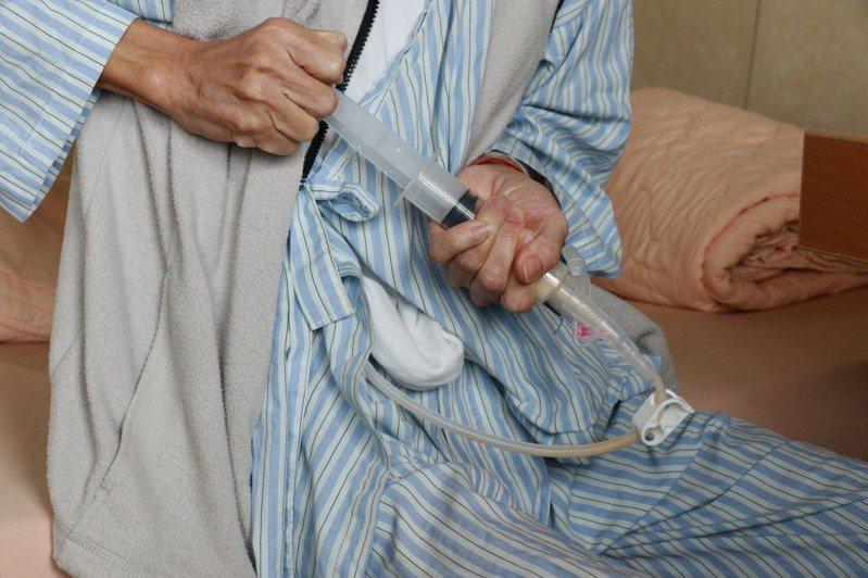 裝置胃造口後,部分患者自行灌食。  本報資料照片
