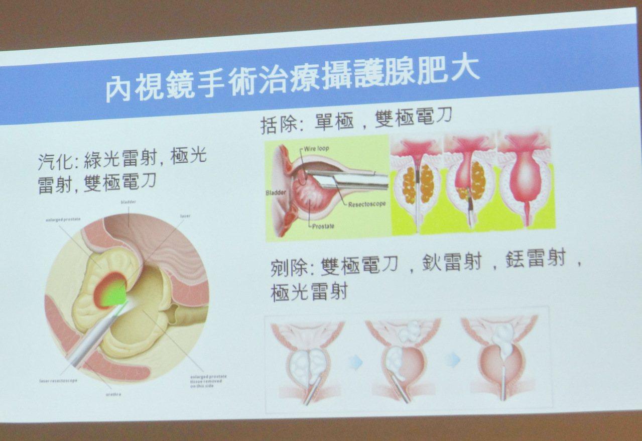 台大雲林分院泌尿部主任黃士維說明各種攝護手術的差異,提供患者最佳的選擇。記者蔡維...