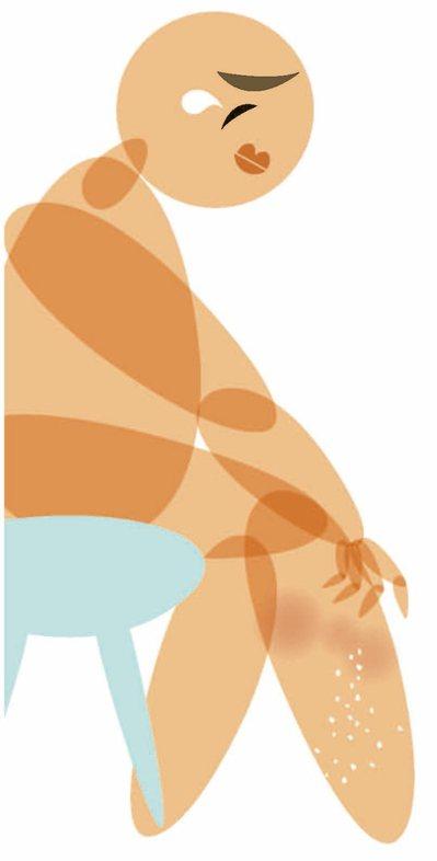 生物製劑讓乾癬治療出現新進展。 本報資料照片