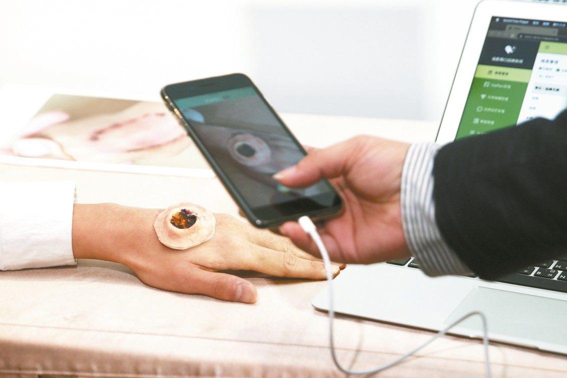 緯創展示遠距傷口照護系統等多套醫療科技。 記者蘇健忠/攝影