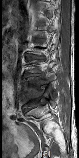 患者椎間盤嚴重被腐蝕位置。圖/童綜合醫院提供