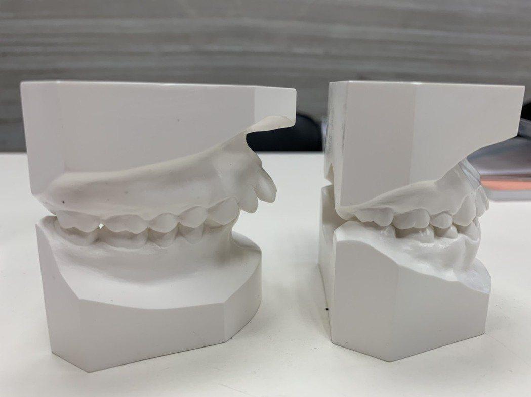 暴牙的患者容易在學習的路上,遭同學霸凌。記者陳雨鑫/攝影