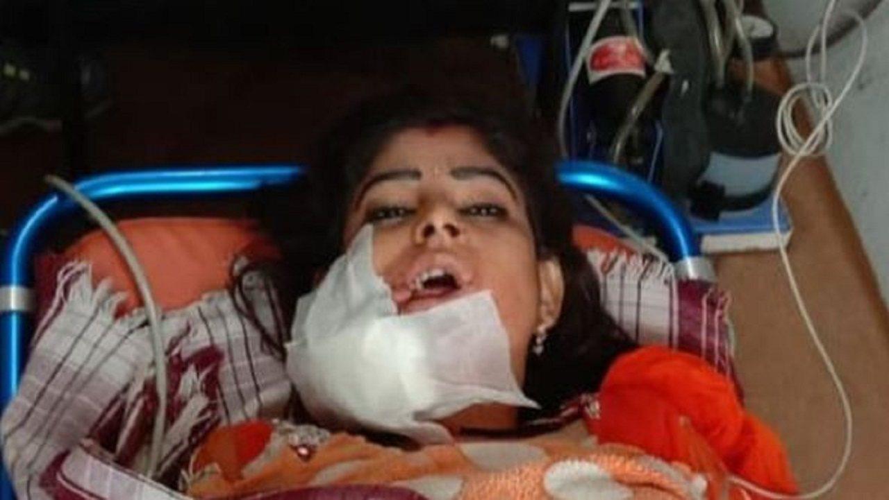 印度婚宴上竟傳出槍響,一名女舞者臉部中彈,正在醫院救治中。畫面翻攝:BBC/SU...