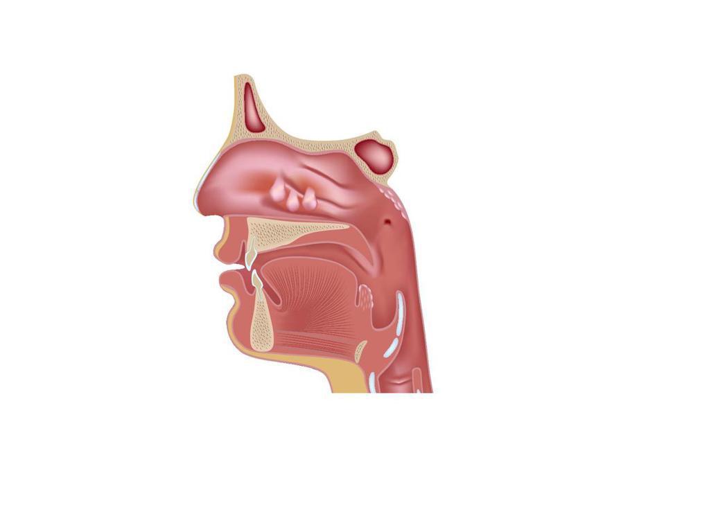 鼻息肉過敏性鼻炎患者,常見鼻息肉問題,可透過電燒手術切除,改善鼻塞,但不代表...