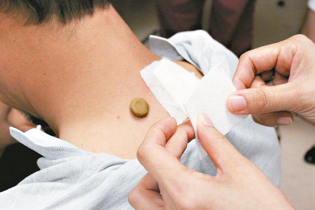 三九貼是利用藥物由穴位經絡直達病處,包含乾薑、艾葉、細辛等藥材。 本報資料照片