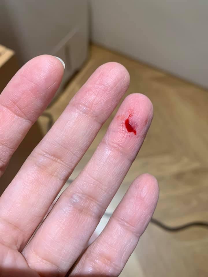 郭昱晴自爆兩個星期錢手指遭夾傷見血。 圖/擷自郭昱晴臉書