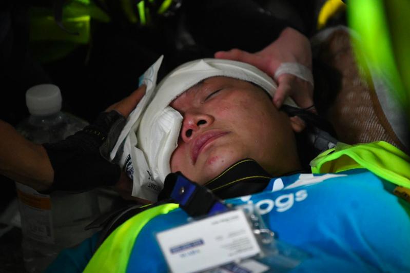 印尼女記者英達在報導反送中抗爭期間,遭港警發射疑似橡膠子彈擊中右眼失明。圖/取自星島網