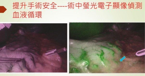 左:未使用ICG螢光顯影技術時,深部血管較不易辨認;右:使用ICG螢光顯影技術後...