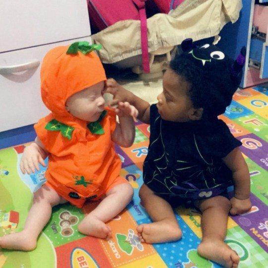 史黛西2月產下一對「一黑一白」的雙胞胎,大衛因患有白化症才使他與家人的膚色不同。圖擷自<a href=