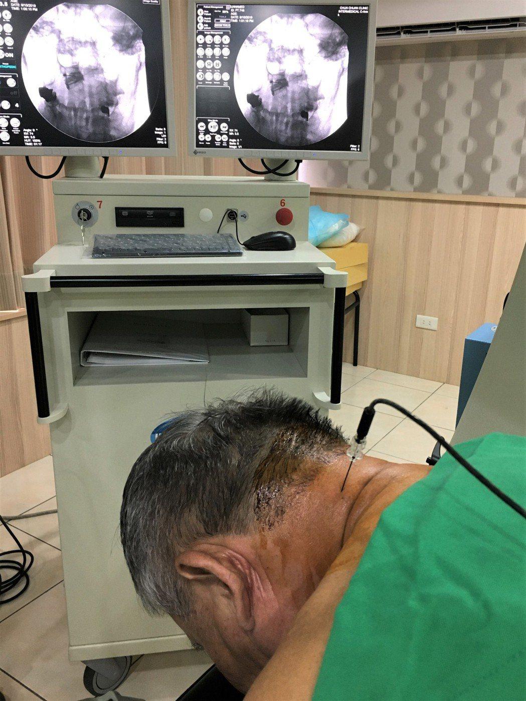 骨科醫師楊家銓為患者施以「射頻神經燒灼術」僅短短15分鐘就解決了這名患者多年的頭...