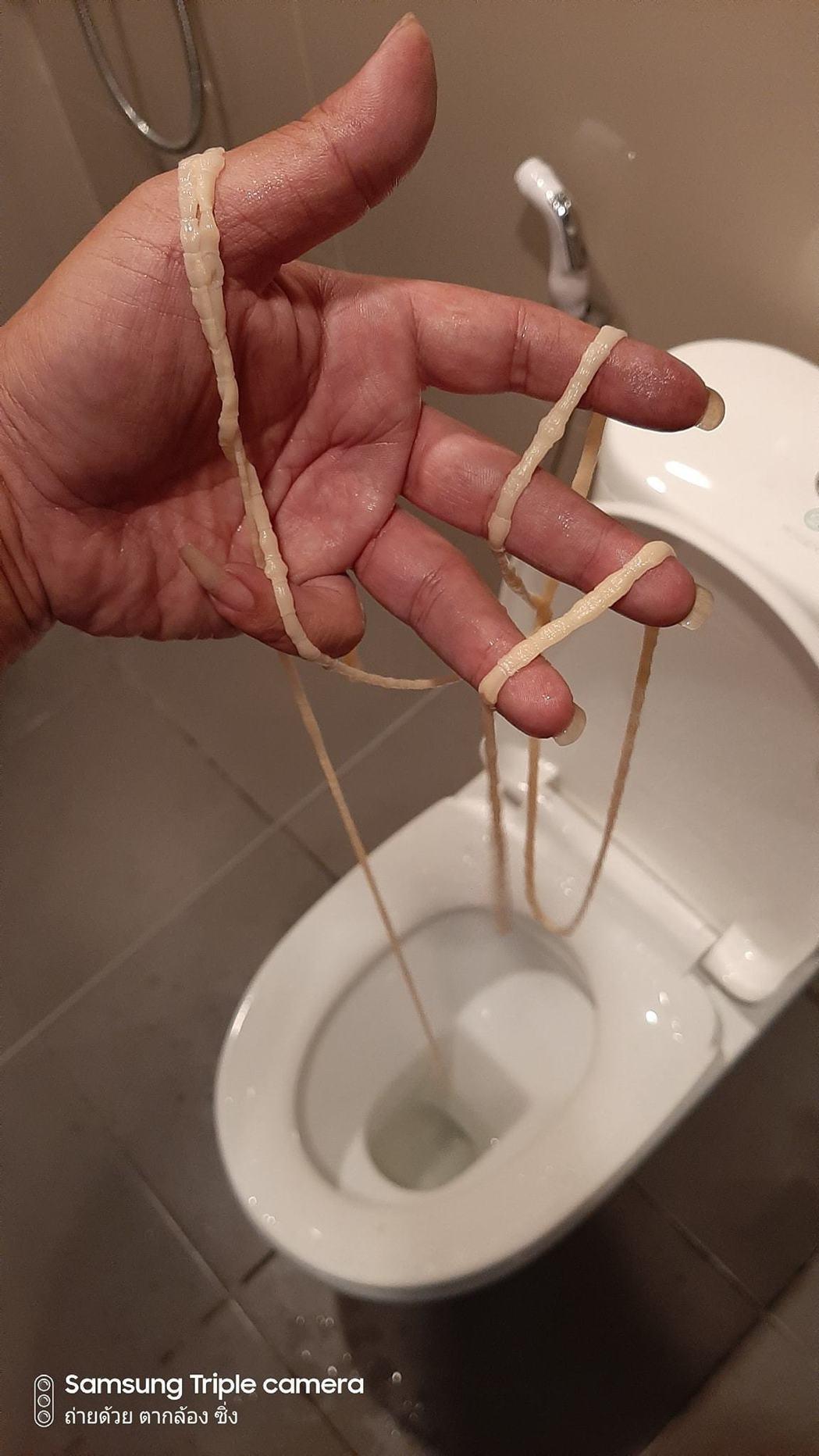 泰國東北烏隆府(Udon Thani)一名男子日前上廁所,突然感覺怪怪的,好像有...